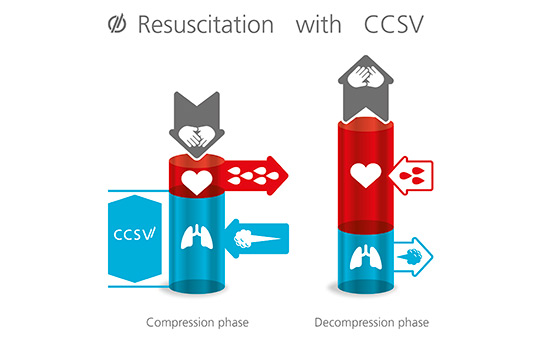 Infographic: Resuscitation with CCSV