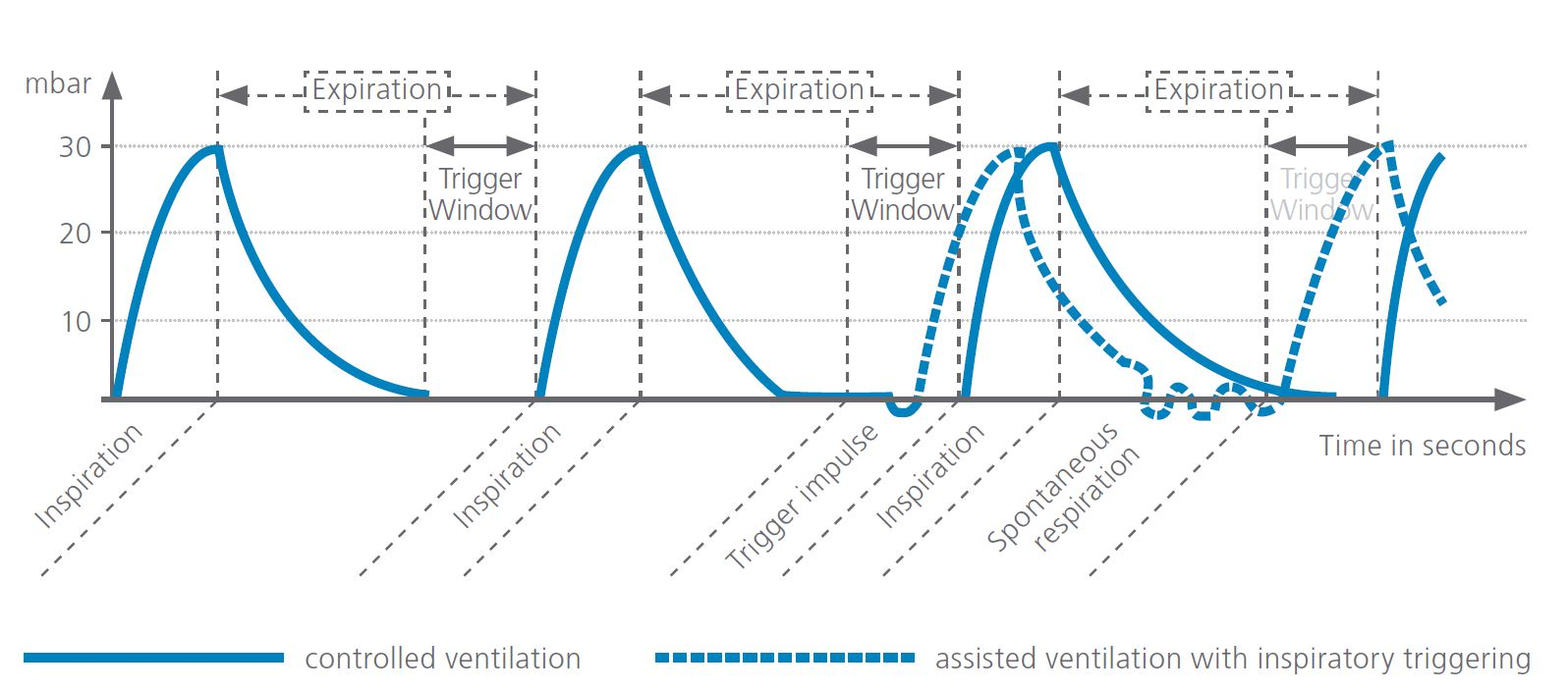 Infographic assisted ventilation with MEDUMAT Standard a