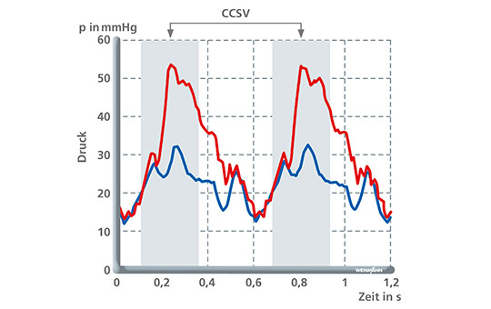 Arterial and pressure control ventilation with CCSV