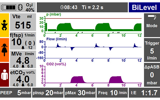 Capnography MEDUMAT Transport screen