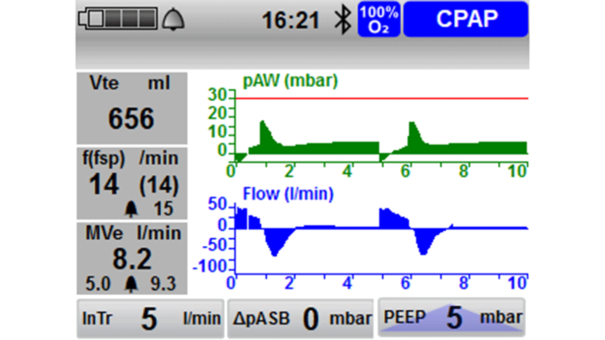 Ventilation Mode CPAP