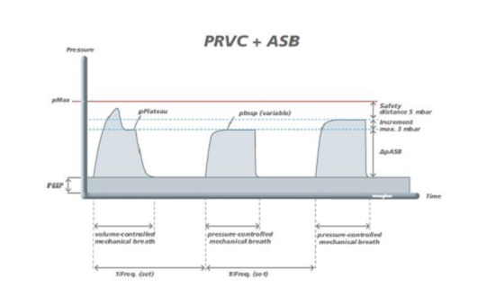 Special Ventilation mode PRVC ASB
