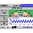 CCSV: Chest Compression Synchronized Ventilation